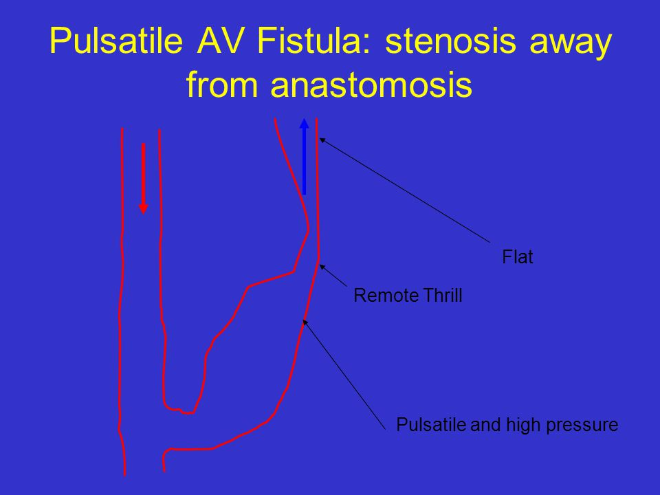 Pulsatile AV Fistula: stenosis away from anastomosis Flat Remote Thrill Pulsatile and high pressure