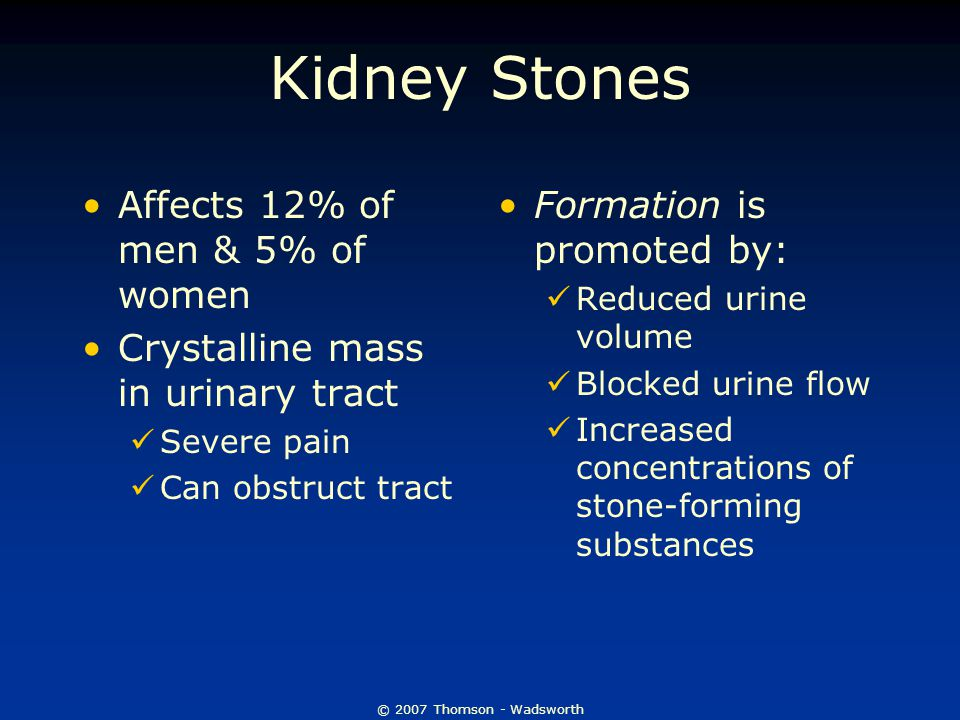 © 2007 Thomson - Wadsworth Kidney Stones Affects 12% of men & 5% of women Crystalline mass in urinary tract Severe pain Can obstruct tract Formation i