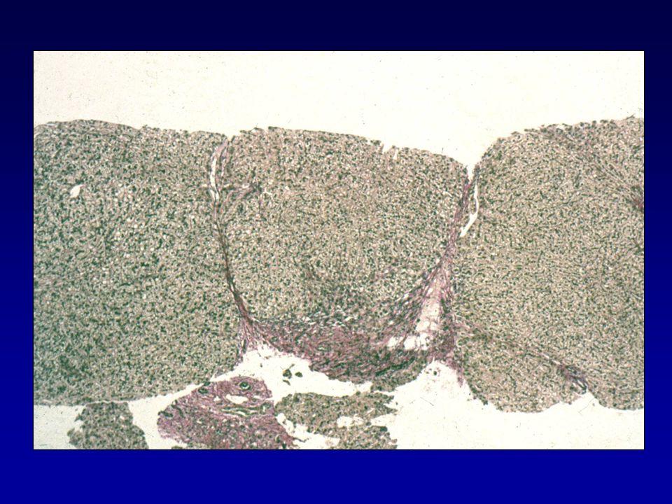 Liver Biopsy Scoring System Ishak et al.J Hepatology 1995;22:696.