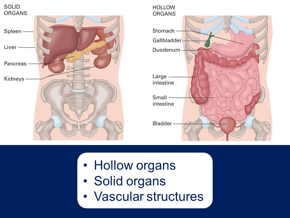 Hollow organs Solid organs Vascular structures