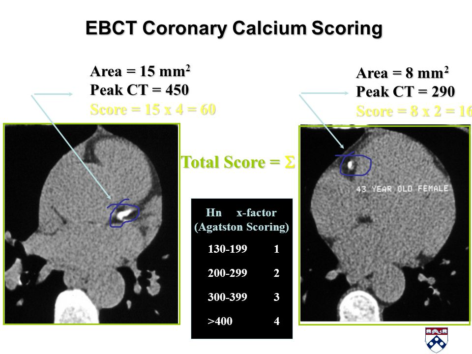 EBCT Coronary Calcium Scoring Hn x-factor (Agatston Scoring) 130-199 1 200-299 2 300-399 3 >400 4 Area = 15 mm 2 Peak CT = 450 Score = 15 x 4 = 60 Are