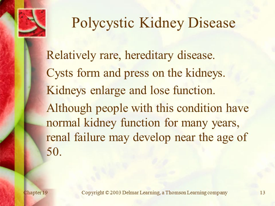 Chapter 19Copyright © 2003 Delmar Learning, a Thomson Learning company13 Polycystic Kidney Disease Relatively rare, hereditary disease.