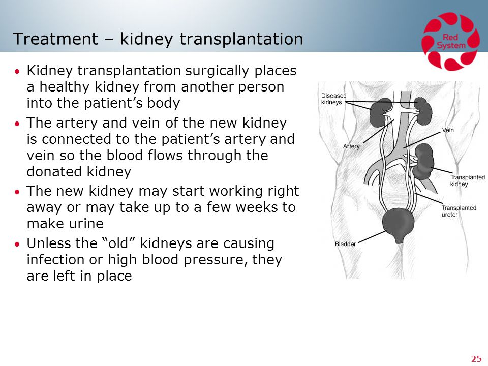 25 Treatment – kidney transplantation Kidney transplantation surgically places a healthy kidney from another person into the patient's body The artery