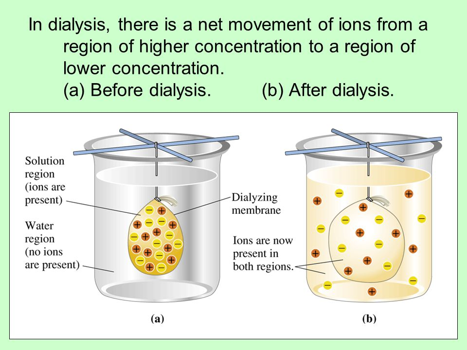 Impurities (ions) can be removed from a solution by using a dialysis procedure.
