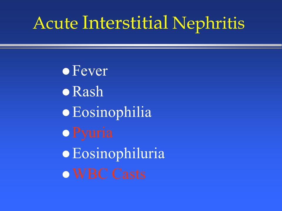 l Fever l Rash l Eosinophilia l Pyuria l Eosinophiluria l WBC Casts Acute Interstitial Nephritis