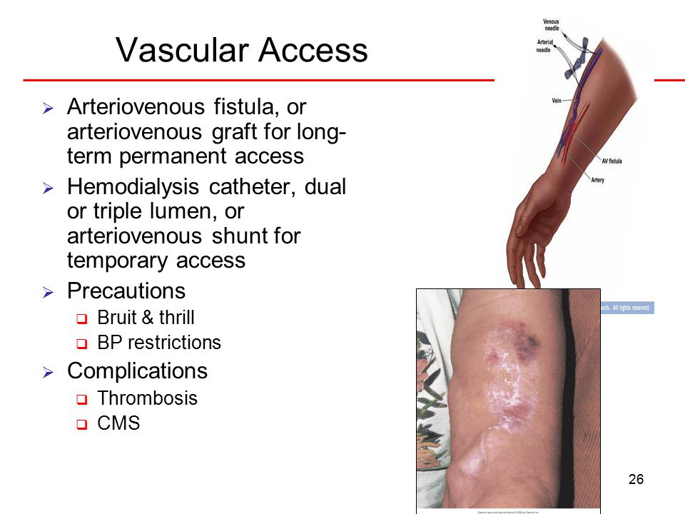 26 Vascular Access  Arteriovenous fistula, or arteriovenous graft for long- term permanent access  Hemodialysis catheter, dual or triple lumen, or arteriovenous shunt for temporary access  Precautions  Bruit & thrill  BP restrictions  Complications  Thrombosis  CMS