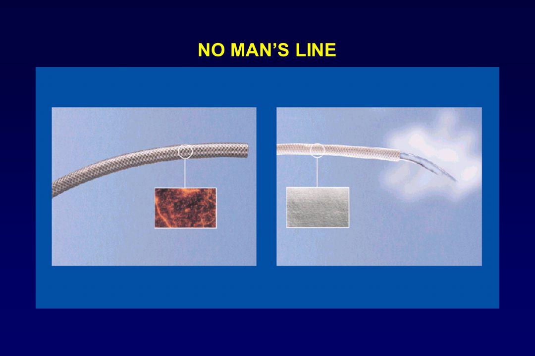 NO MAN'S LINE