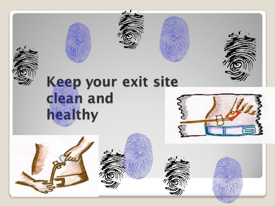 Keep your exit site clean and healthy