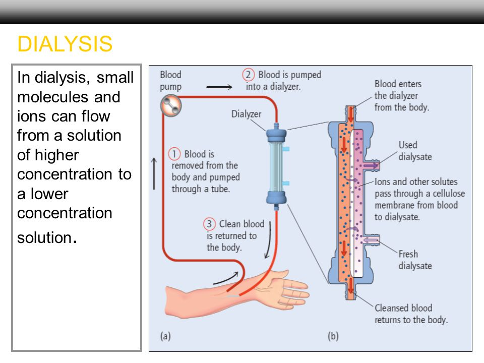 33 In dialysis, small molecules and ions can flow from a solution of higher concentration to a lower concentration solution. DIALYSIS