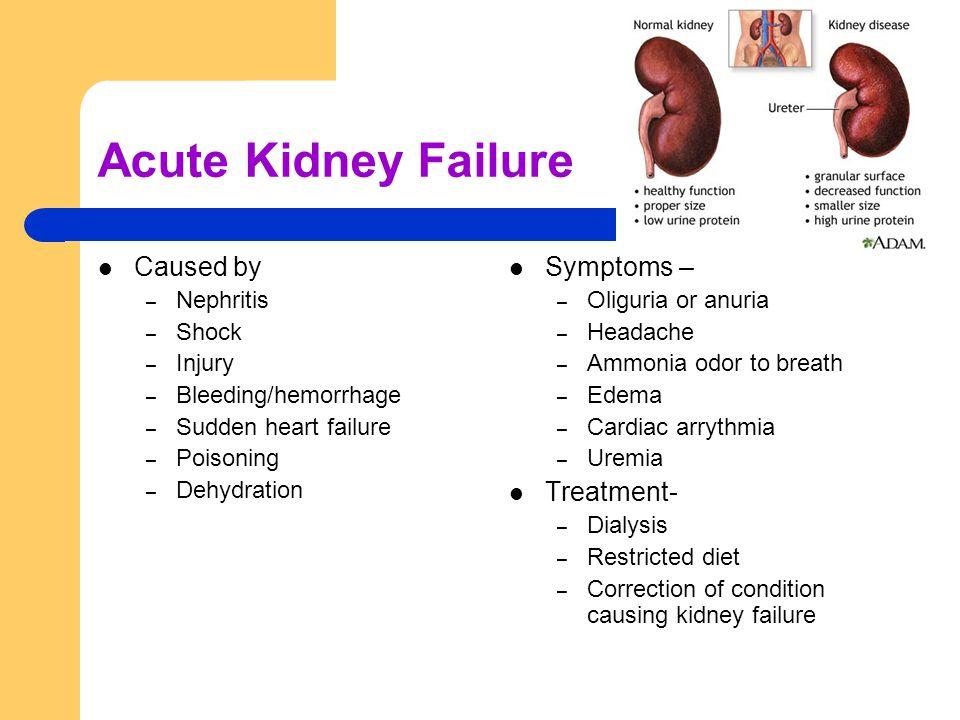 Acute Kidney Failure Caused by – Nephritis – Shock – Injury – Bleeding/hemorrhage – Sudden heart failure – Poisoning – Dehydration Symptoms – – Oliguria or anuria – Headache – Ammonia odor to breath – Edema – Cardiac arrythmia – Uremia Treatment- – Dialysis – Restricted diet – Correction of condition causing kidney failure