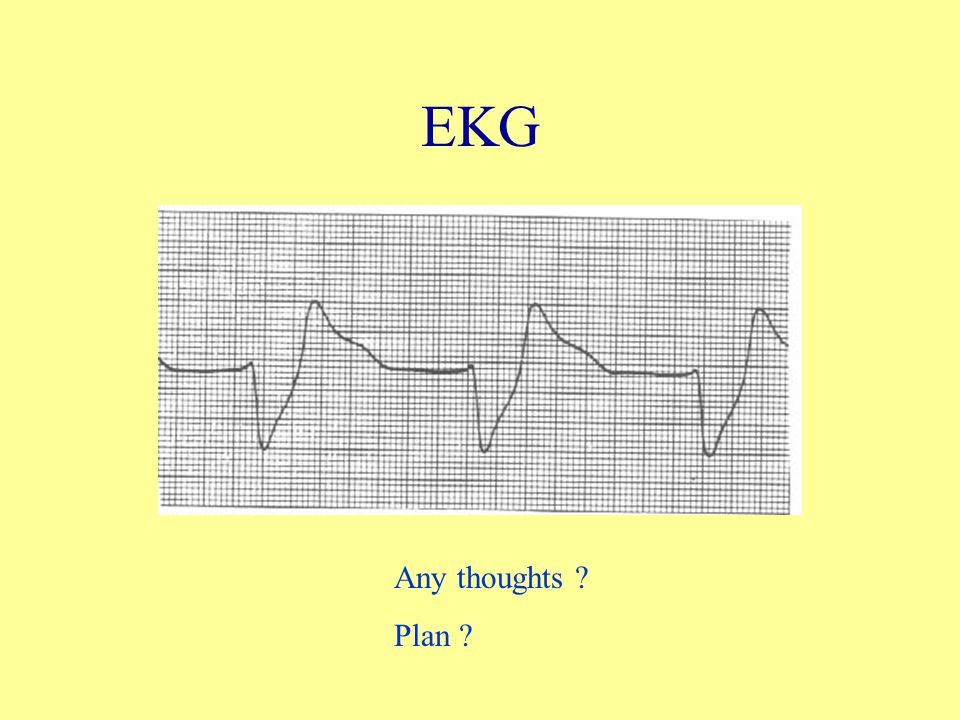 EKG Any thoughts ? Plan ?