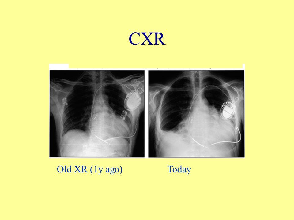 CXR Old XR (1y ago)Today