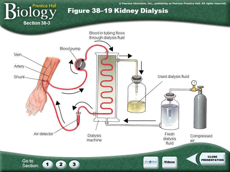 Go to Section: Vein Artery Shunt Air detector Dialysis machine Blood pump Blood in tubing flows through dialysis fluid Used dialysis fluid Compressed air Fresh dialysis fluid Figure 38–19 Kidney Dialysis Section 38-3