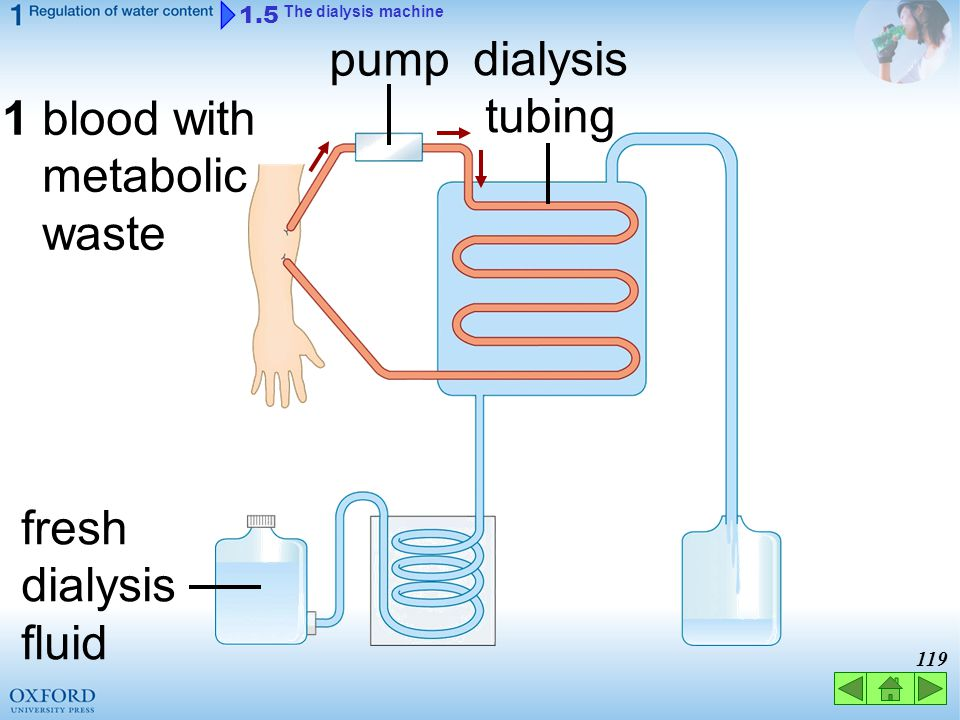 118 1.5 The dialysis machine kidney machine Animation helps remove metabolic waste by haemodialysis ( 血液透析 )