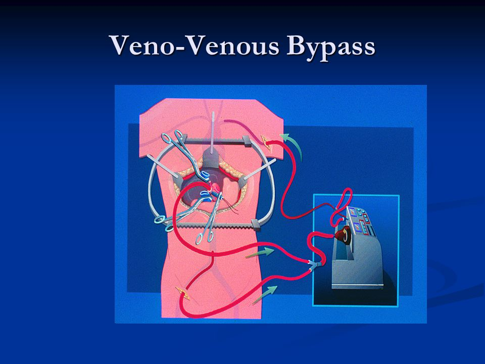 Veno-Venous Bypass
