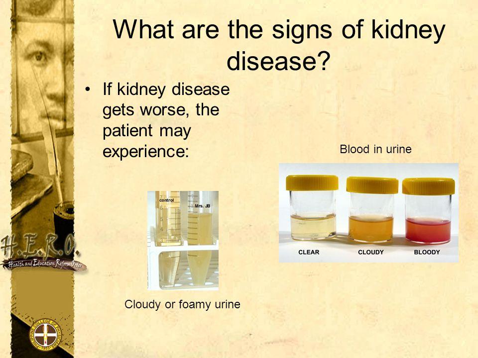 Ways of preventing kidney disease 1.Keep your blood pressure normal < 120/80 2.