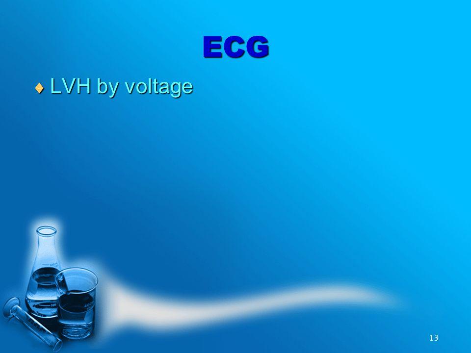 13 ECG  LVH by voltage