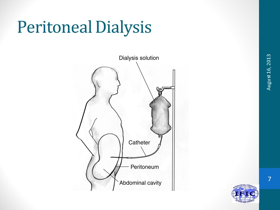 Peritoneal Dialysis August 16, 2013 7