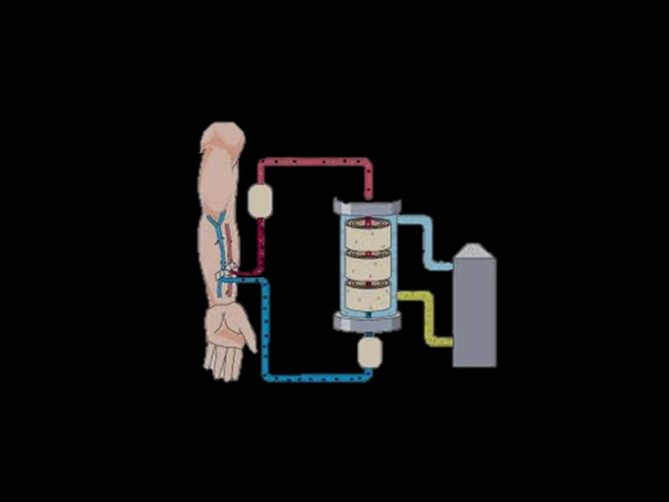 Peritoneal dialysis uses the lining of your abdomen, called the peritoneal membrane, to filter your blood.