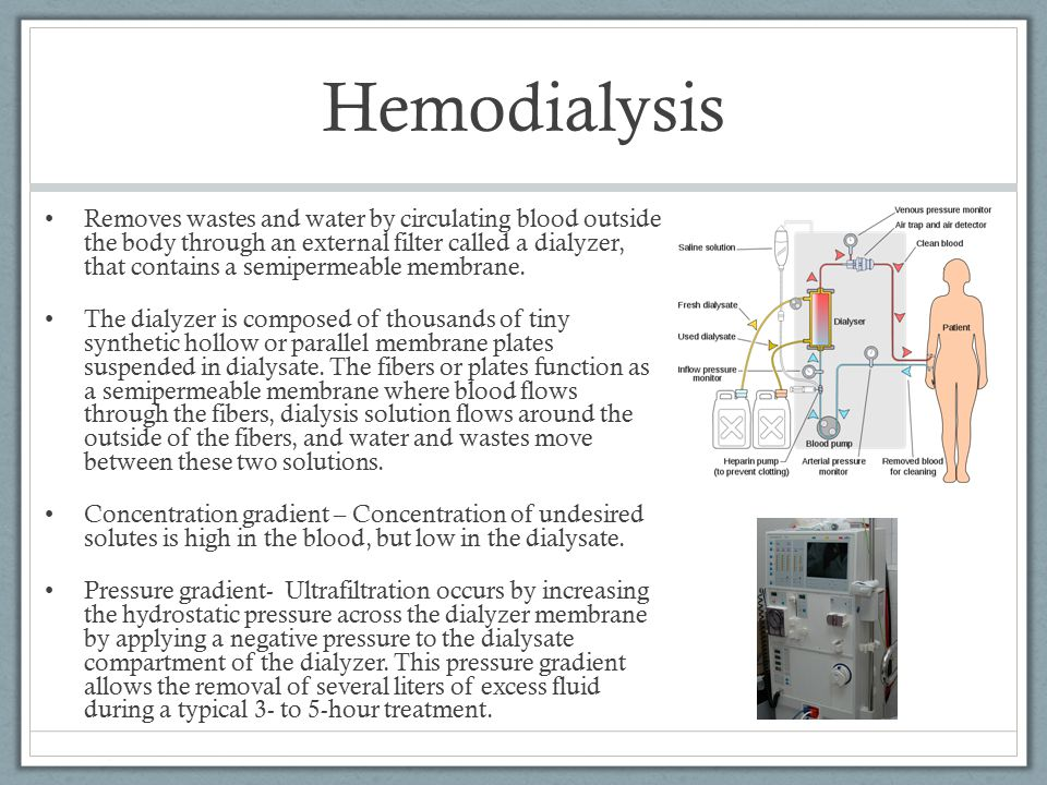 Hemodialysis Removes wastes and water by circulating blood outside the body through an external filter called a dialyzer, that contains a semipermeabl