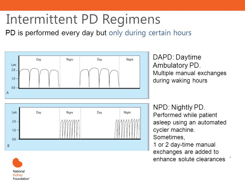 Intermittent PD Regimens PD is performed every day but only during certain hours DAPD: Daytime Ambulatory PD.