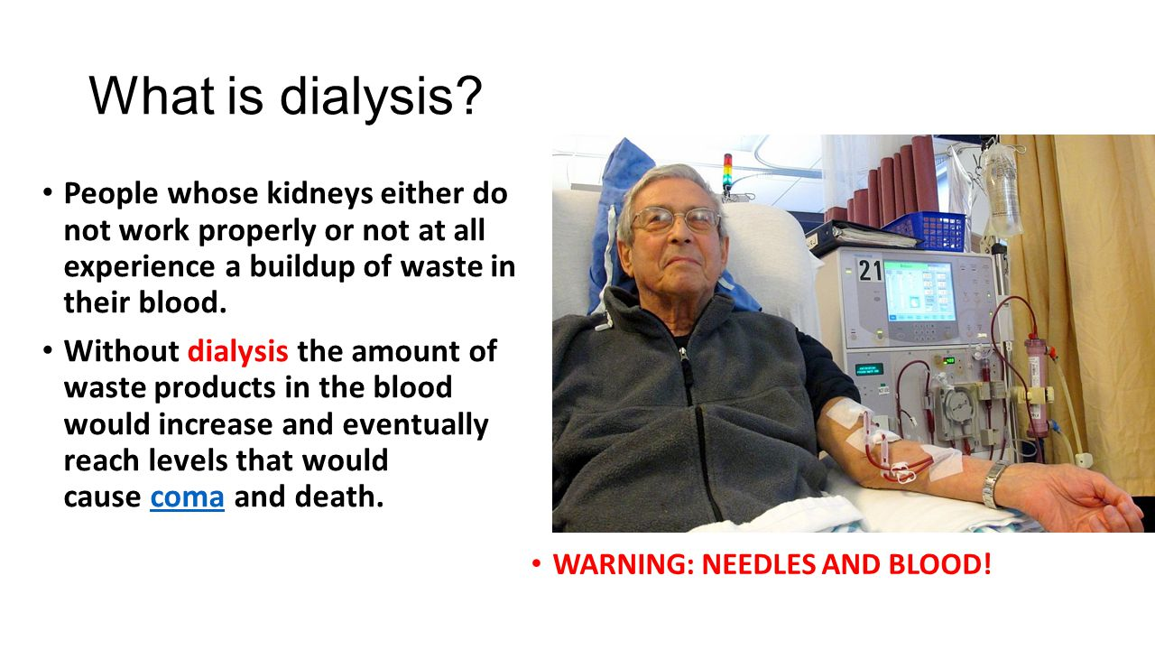 What is dialysis? People whose kidneys either do not work properly or not at all experience a buildup of waste in their blood. Without dialysis the am