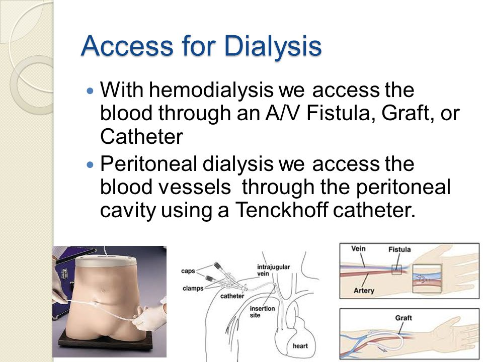Access for Dialysis With hemodialysis we access the blood through an A/V Fistula, Graft, or Catheter Peritoneal dialysis we access the blood vessels through the peritoneal cavity using a Tenckhoff catheter.