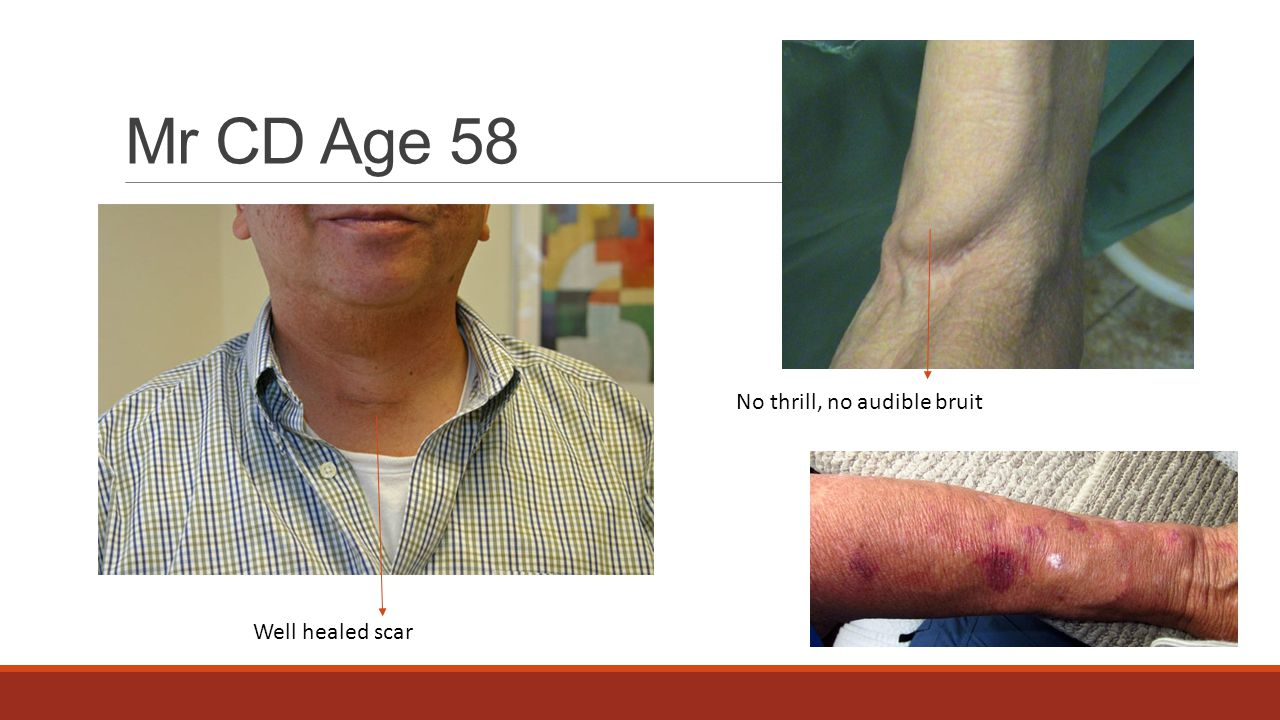 Mr CD Age 58 No thrill, no audible bruit Well healed scar