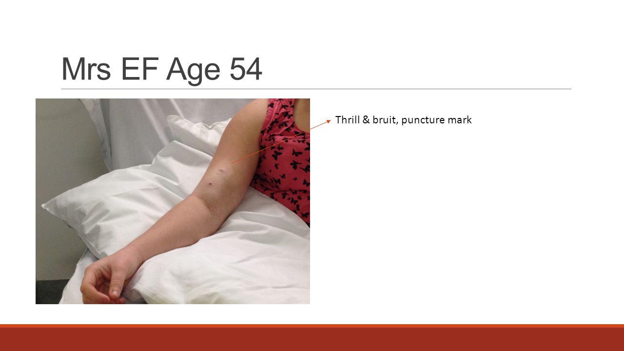 Mrs EF Age 54 Thrill & bruit, puncture mark