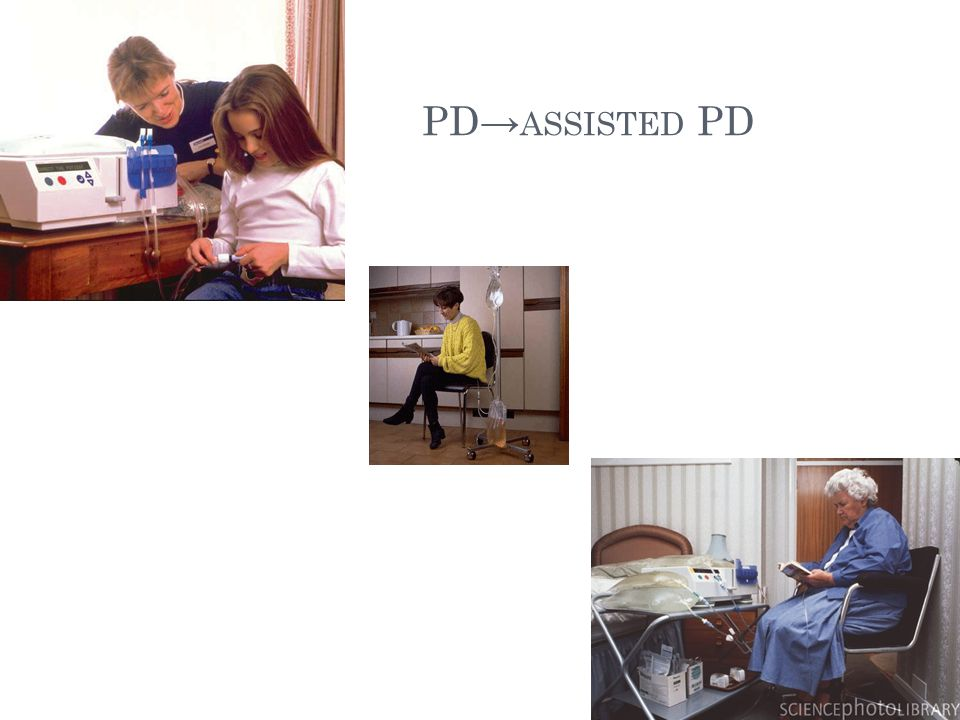 PD→ ASSISTED PD