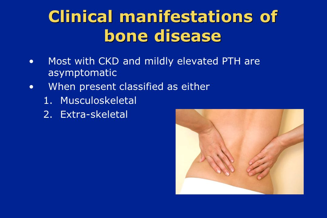 Clinical manifestations of bone disease Most with CKD and mildly elevated PTH are asymptomatic When present classified as either 1. Musculoskeletal 2.