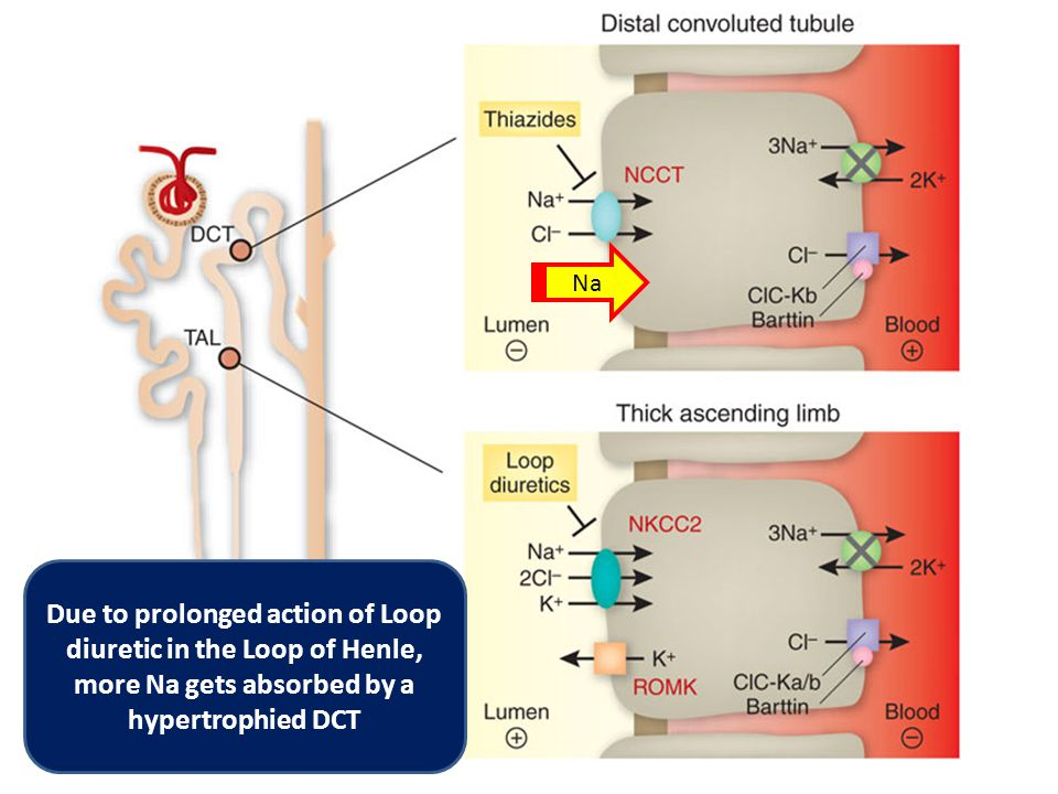 Na Due to prolonged action of Loop diuretic in the Loop of Henle, more Na gets absorbed by a hypertrophied DCT
