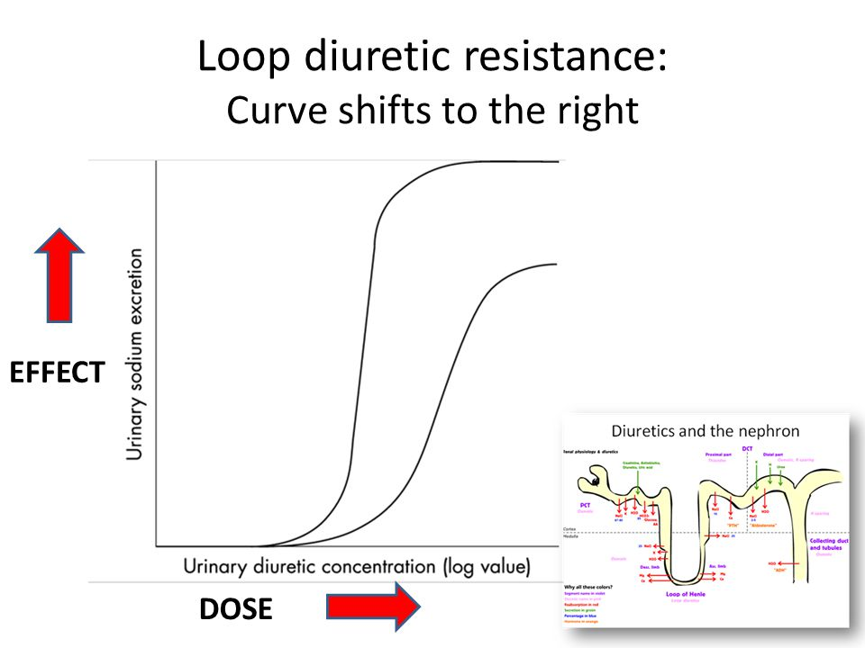 Loop diuretic resistance: Curve shifts to the right DOSE EFFECT