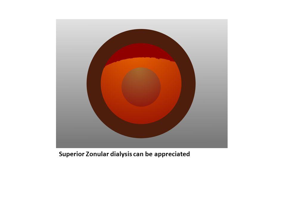 Superior Zonular dialysis can be appreciated