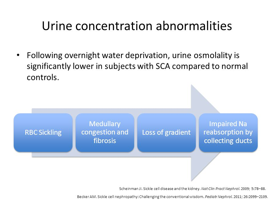 Urine concentration abnormalities Following overnight water deprivation, urine osmolality is significantly lower in subjects with SCA compared to norm