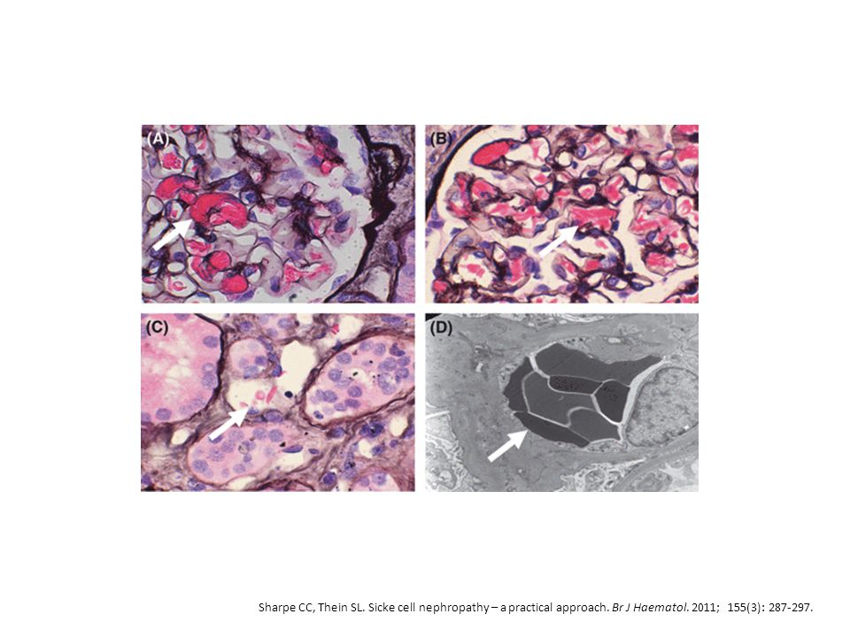 Sharpe CC, Thein SL. Sicke cell nephropathy – a practical approach. Br J Haematol. 2011; 155(3): 287-297.