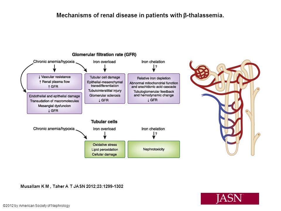 Mechanisms of renal disease in patients with β-thalassemia. Musallam K M, Taher A T JASN 2012;23:1299-1302 ©2012 by American Society of Nephrology