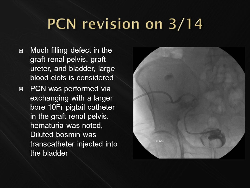  Much filling defect in the graft renal pelvis, graft ureter, and bladder, large blood clots is considered  PCN was performed via exchanging with a larger bore 10Fr pigtail catheter in the graft renal pelvis.