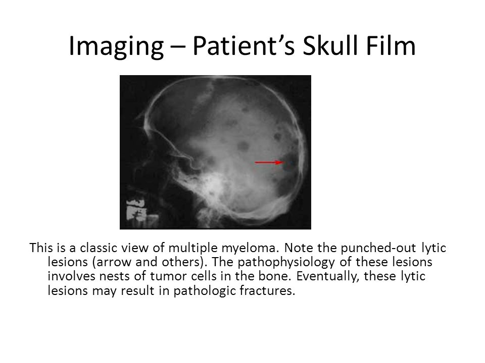 Imaging – Patient's Skull Film This is a classic view of multiple myeloma. Note the punched-out lytic lesions (arrow and others). The pathophysiology