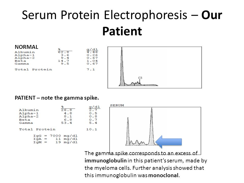 Serum Protein Electrophoresis – Our Patient Serum Protein Electrophoresis NORMAL PATIENT – note the gamma spike. The gamma spike corresponds to an exc