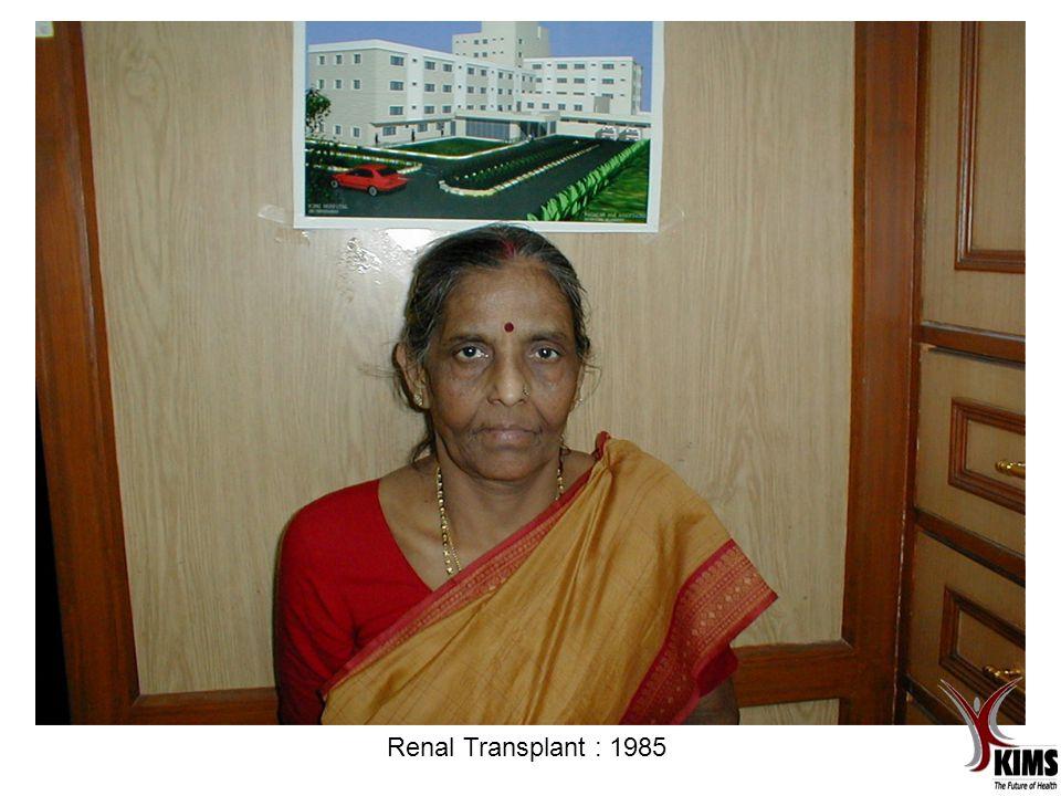 Renal Transplant : 1985
