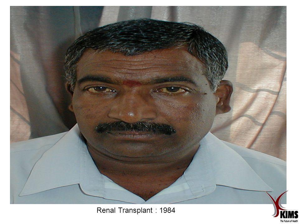 Renal Transplant : 1984