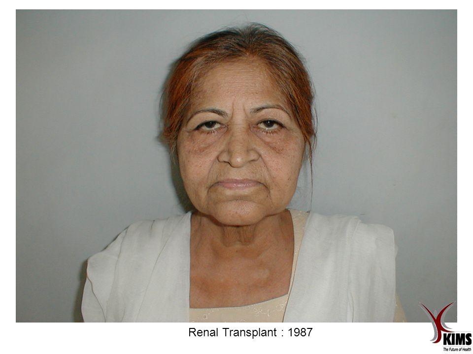 Renal Transplant : 1987