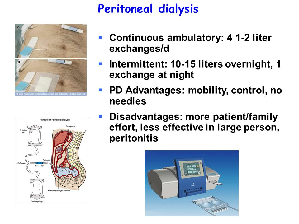 Peritoneal dialysis  Continuous ambulatory: 4 1-2 liter exchanges/d  Intermittent: 10-15 liters overnight, 1 exchange at night  PD Advantages: mobi