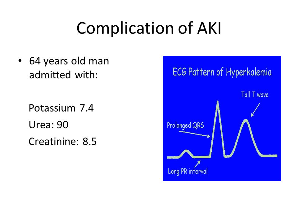 Complication of AKI 64 years old man admitted with: Potassium 7.4 Urea: 90 Creatinine: 8.5