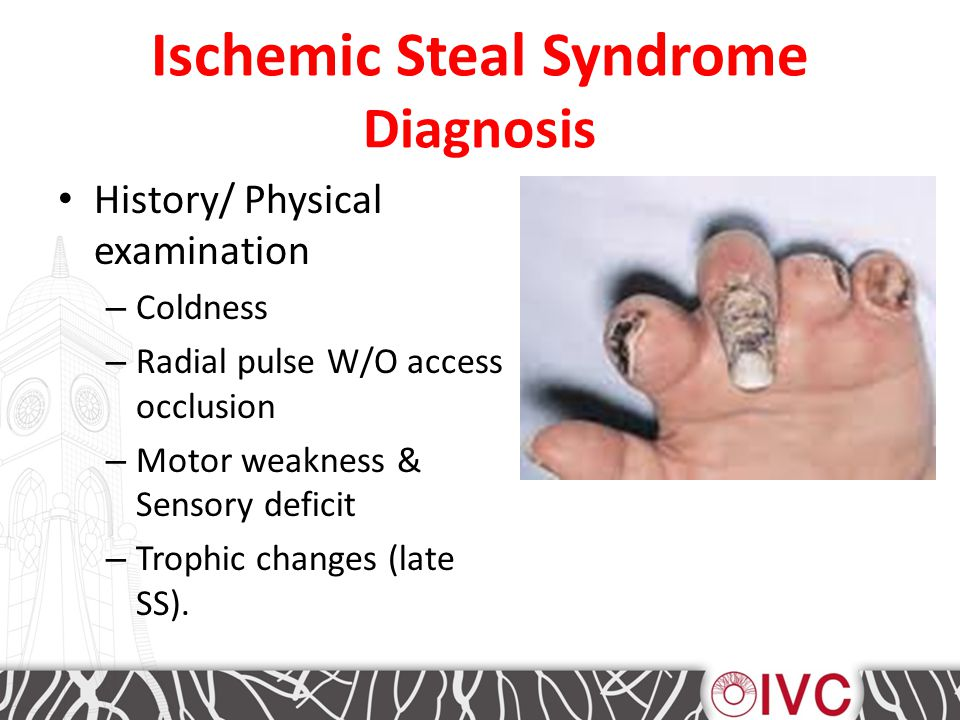 Ischemic Steal Syndrome Diagnosis History/ Physical examination – Coldness – Radial pulse W/O access occlusion – Motor weakness & Sensory deficit – Trophic changes (late SS).