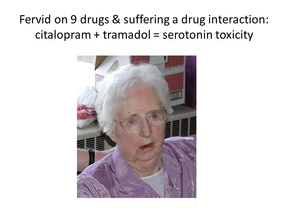 Fervid on 9 drugs & suffering a drug interaction: citalopram + tramadol = serotonin toxicity