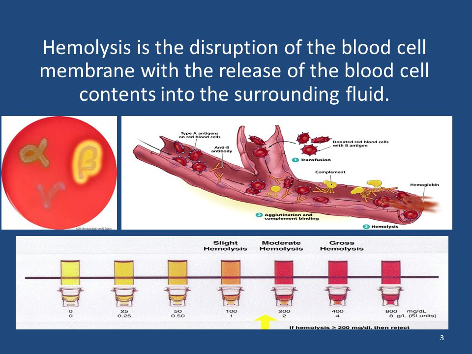 Hemolysis is the disruption of the blood cell membrane with the release of the blood cell contents into the surrounding fluid.