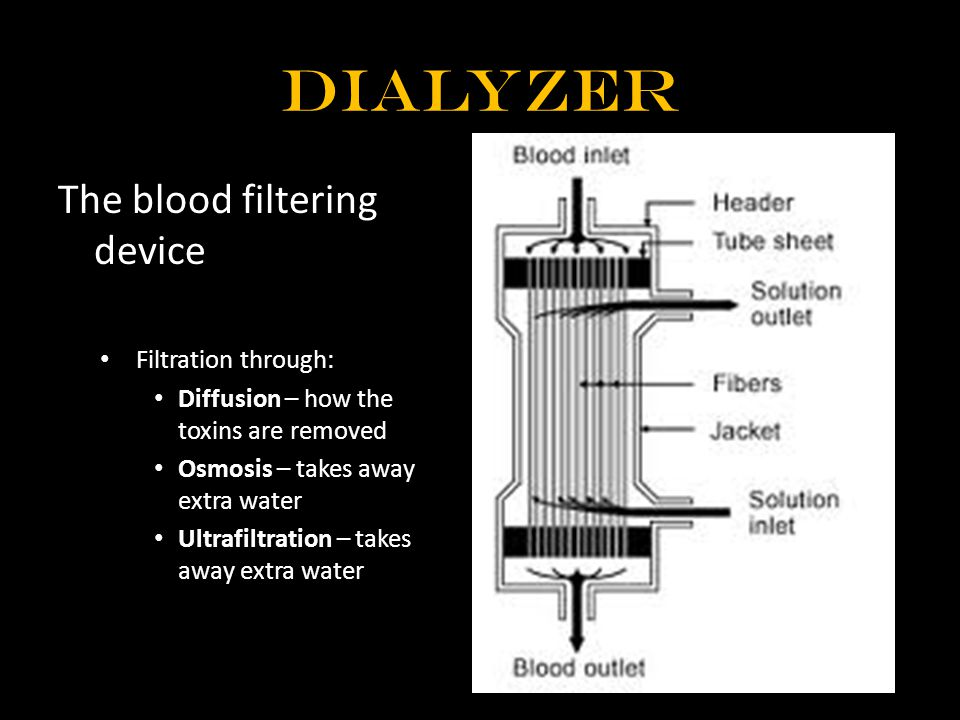Dialyzer The blood filtering device Filtration through: Diffusion – how the toxins are removed Osmosis – takes away extra water Ultrafiltration – takes away extra water
