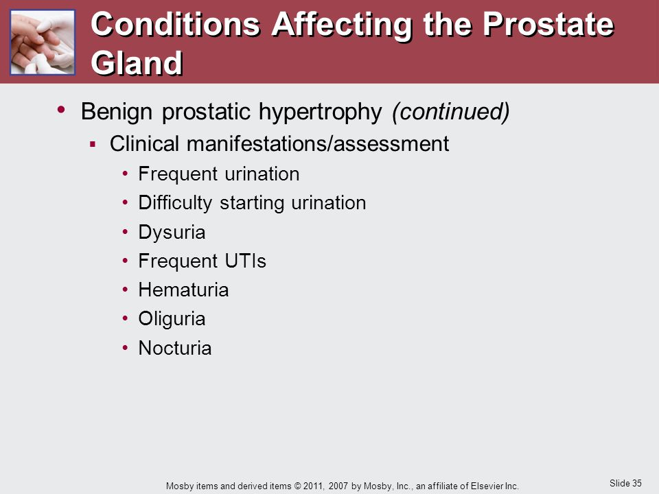 Slide 35 Mosby items and derived items © 2011, 2007 by Mosby, Inc., an affiliate of Elsevier Inc. Conditions Affecting the Prostate Gland Benign prost